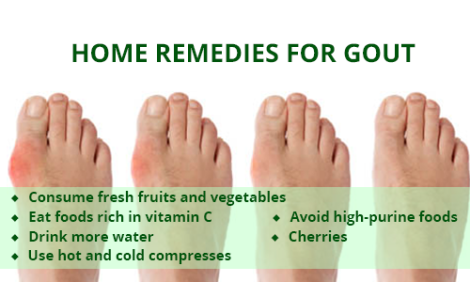 Gout affects shoes sizes